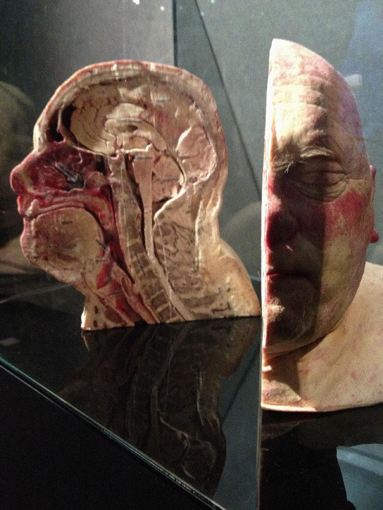 half-head